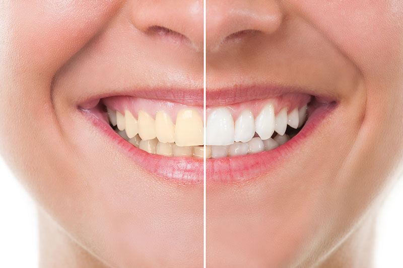 Teeth Whitening - Downtown Dental Lemoore, Lemoore Dentist